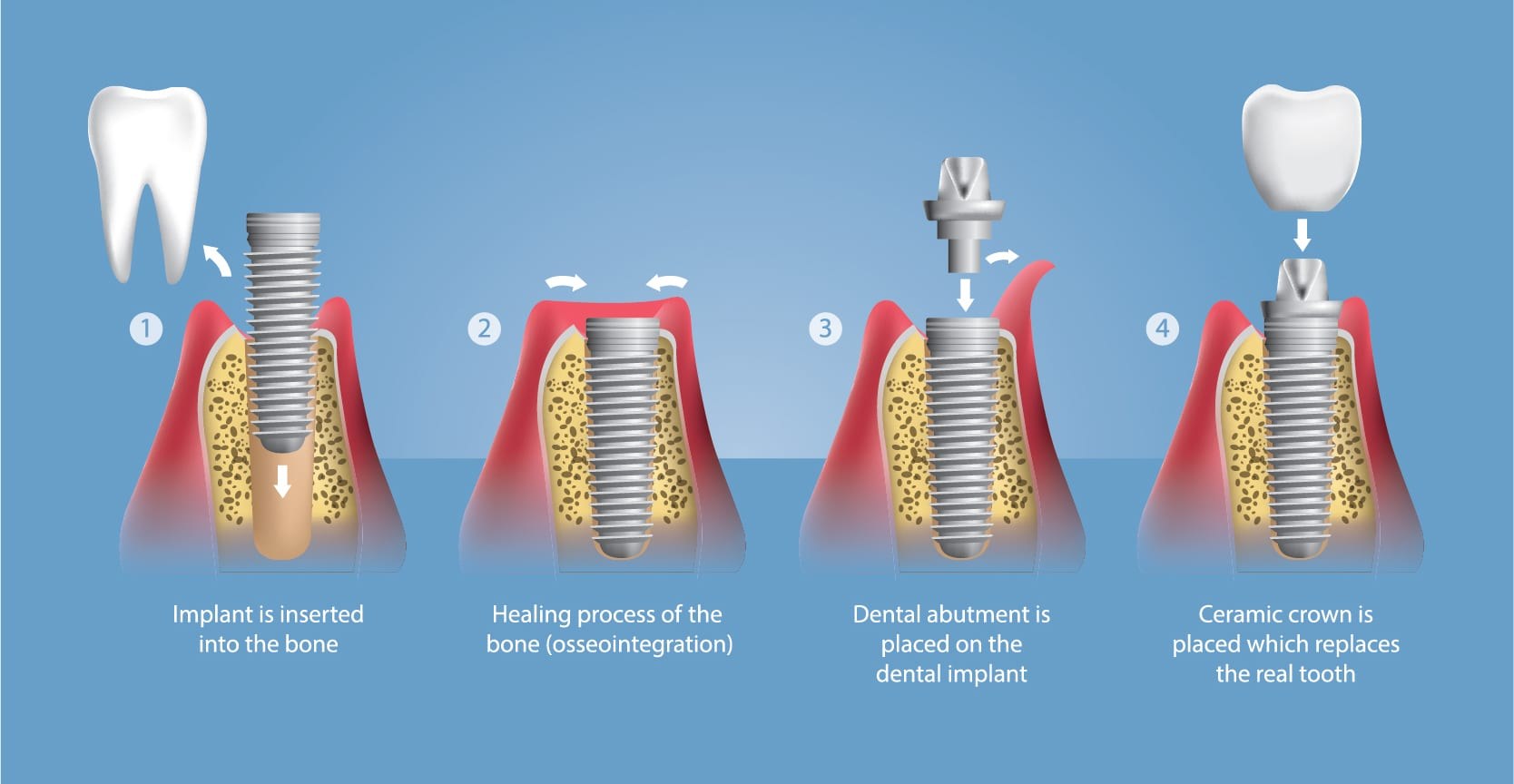 Dental Implants in Searcy AR